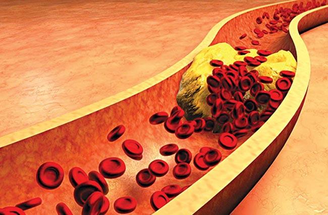 Tăng mỡ máu ở người cao tuổi